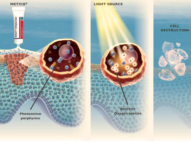 Daylight PDT Is A Selective Treatment. It Only Affects The Damaged Cells  And After Exposure To Light, Destroys The Cancer Cells.