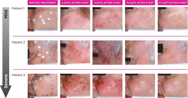 PICATO - Queensland Skin Cancer Clinic